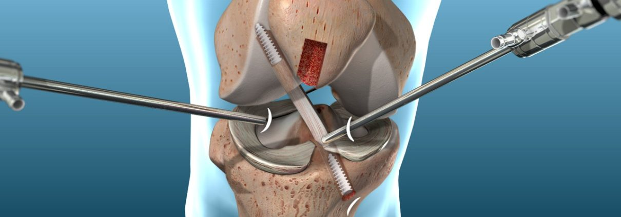 ACL Reconstruction in Lucknow | Radius Hospital